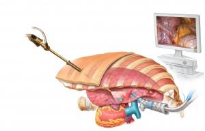 robotik akciğer ameliyatı